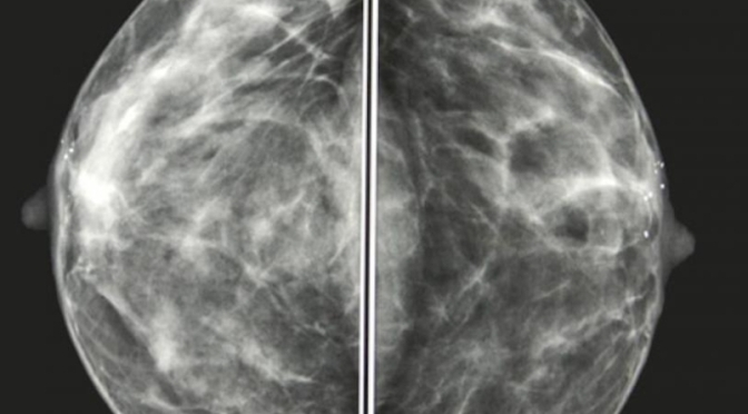 The Importance of Doing your Mammogram from a Technologist's Point of View